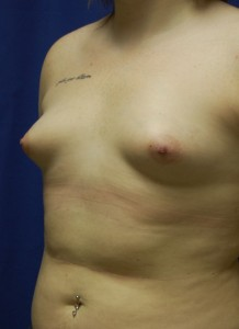 breast augmentation in Bryn Mawr, PA | Claytor/Noone Plastic Surgery