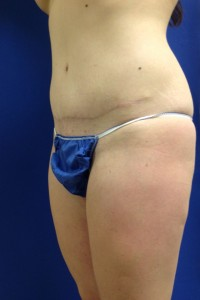 How Much Does A Tummy Tuck with a Brazilian Butt Lift Cost? | Bryn Mawr PA