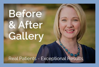 botox before and after gallery | Claytor/Noone Plastic Surgery