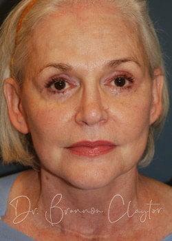 facelift patient philadelphia & bryn mawr pa