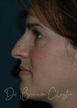 rhinoplasty patient bryn mawr pa before
