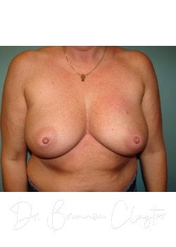Breast Reconstruction Before Philadelphia, Bryn Mawr PA