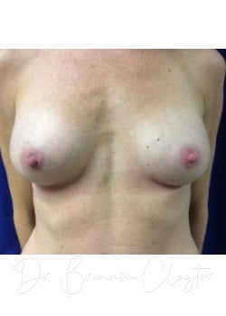 Silicone Breast Implant After Photo Philadelphia | Bryn Mawr PA | Main Line