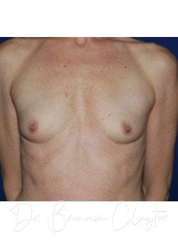 Silicone Breast Implant Before Photo Philadelphia | Bryn Mawr PA | Main Line