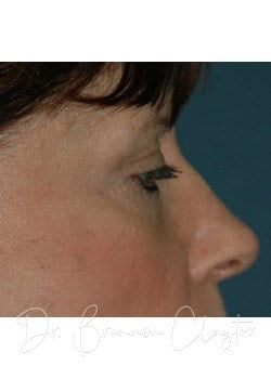 Eyelid Surgery Philadelphia | Blepharoplasty Bryn Mawr PA After Photo