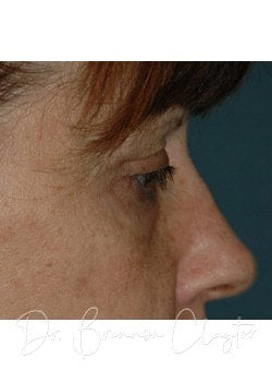 Eyelid Surgery Philadelphia | Blepharoplasty Bryn Mawr PA Before Photo
