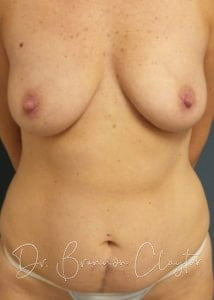 Mommy Makeover   Claytor Noone Plastic Surgery   Bryn Mawr, PA