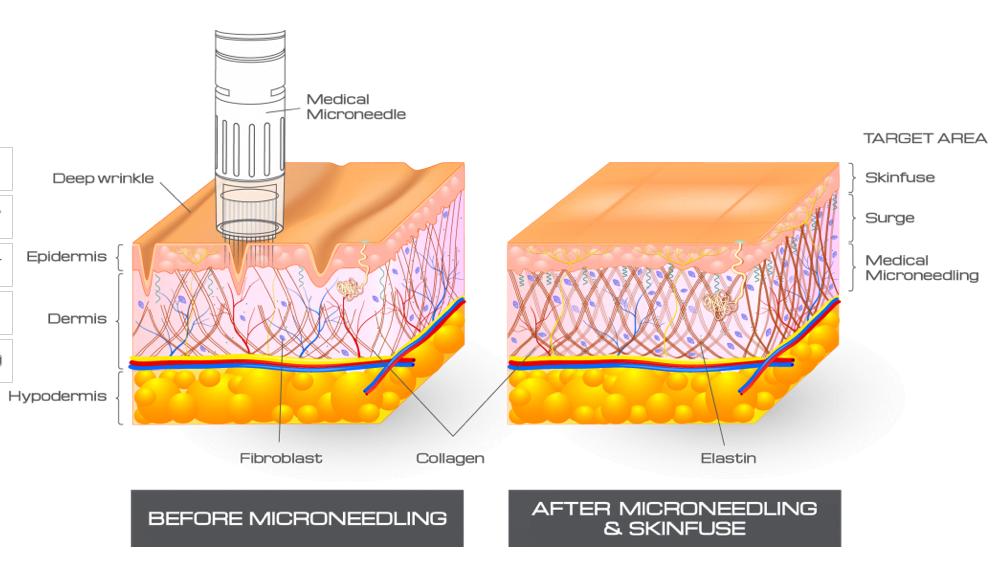 Microneedling | Claytor Noone Plastic Surgery | Bryn Mawr, PA