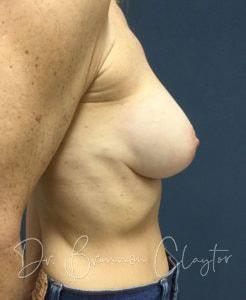plastic surgery bryn mawr pa | Claytor Noone Plastic Surgery