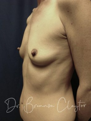 Breast Augmentation with Silicone