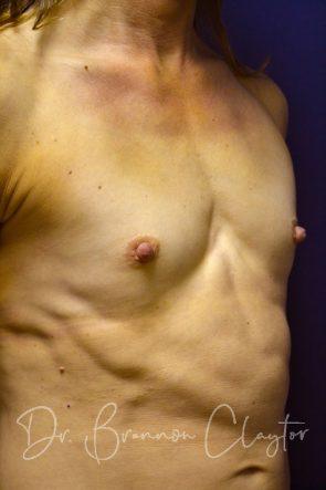 Breast Augmentation 200 CC Silicone