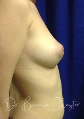 Breast Augmentation 350 cc silicone implant