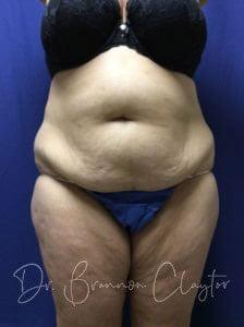 patient 1 abdominoplasty pre - 1