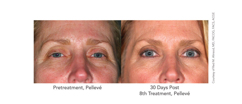 pelleve main line | skin tightening bryn mawr