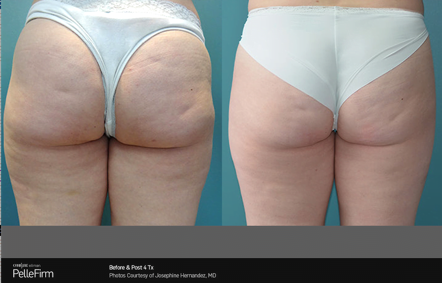 Pellefirm Philadelphia | Cellulite Reduction PA