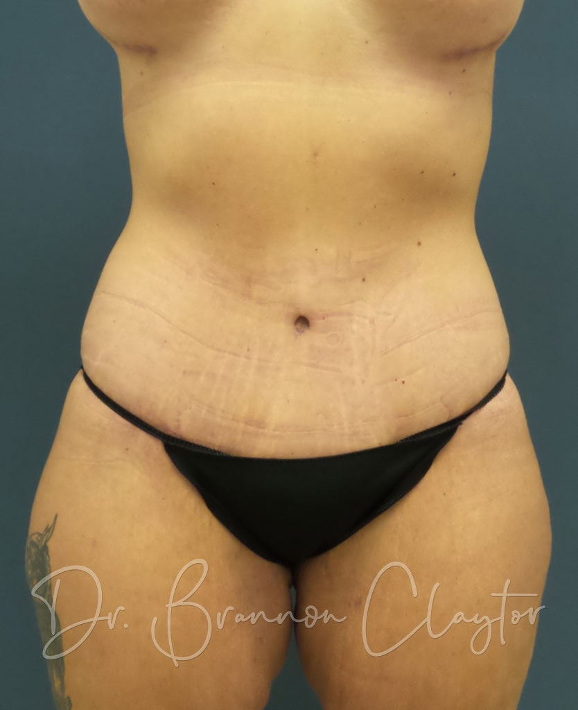 Tummy Tuck Surgery Philadelphia PA