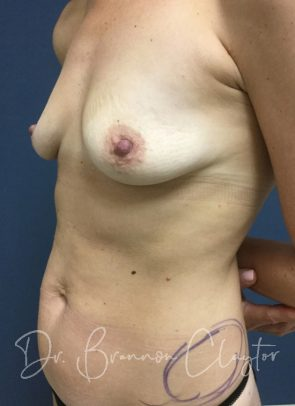 Mommy Makeover with 200 CC implant and Tummy Tuck