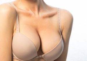 Did You Know That Breast Reduction Could Do This?