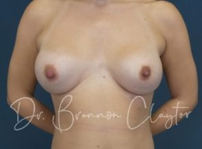 Breast Augmentation with 265 cc Silicone