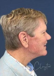Male Facelift Philadelphia | Bryn Mawr PA