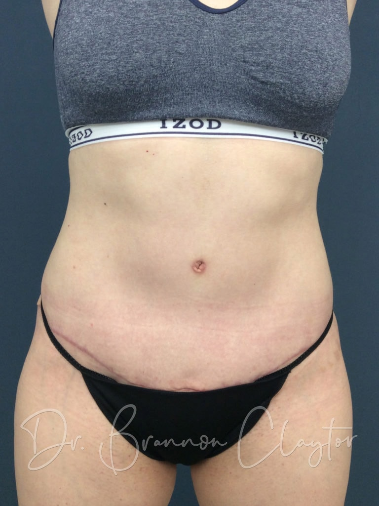 Tummy Tuck Before and After Philadelphia PA