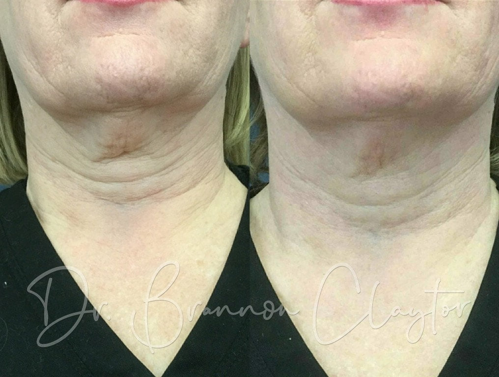 Fractional Laser Before and After Philadelphia PA