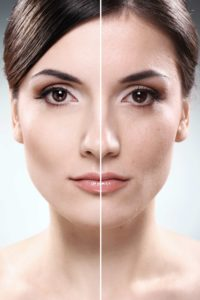 Facelift | Claytor Noone Plastic Surgery | Bryn Mawr PA