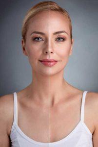 Dermal Fillers | Claytor Noone Plastic Surgery | Bryn Mawr PA
