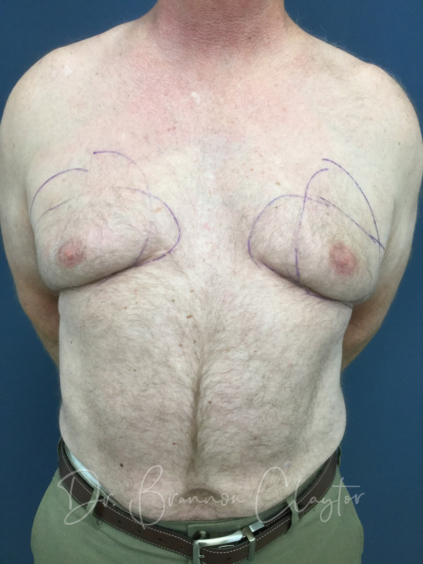 Male Breast Reduction Philadelphia | Bryn Mawr PA