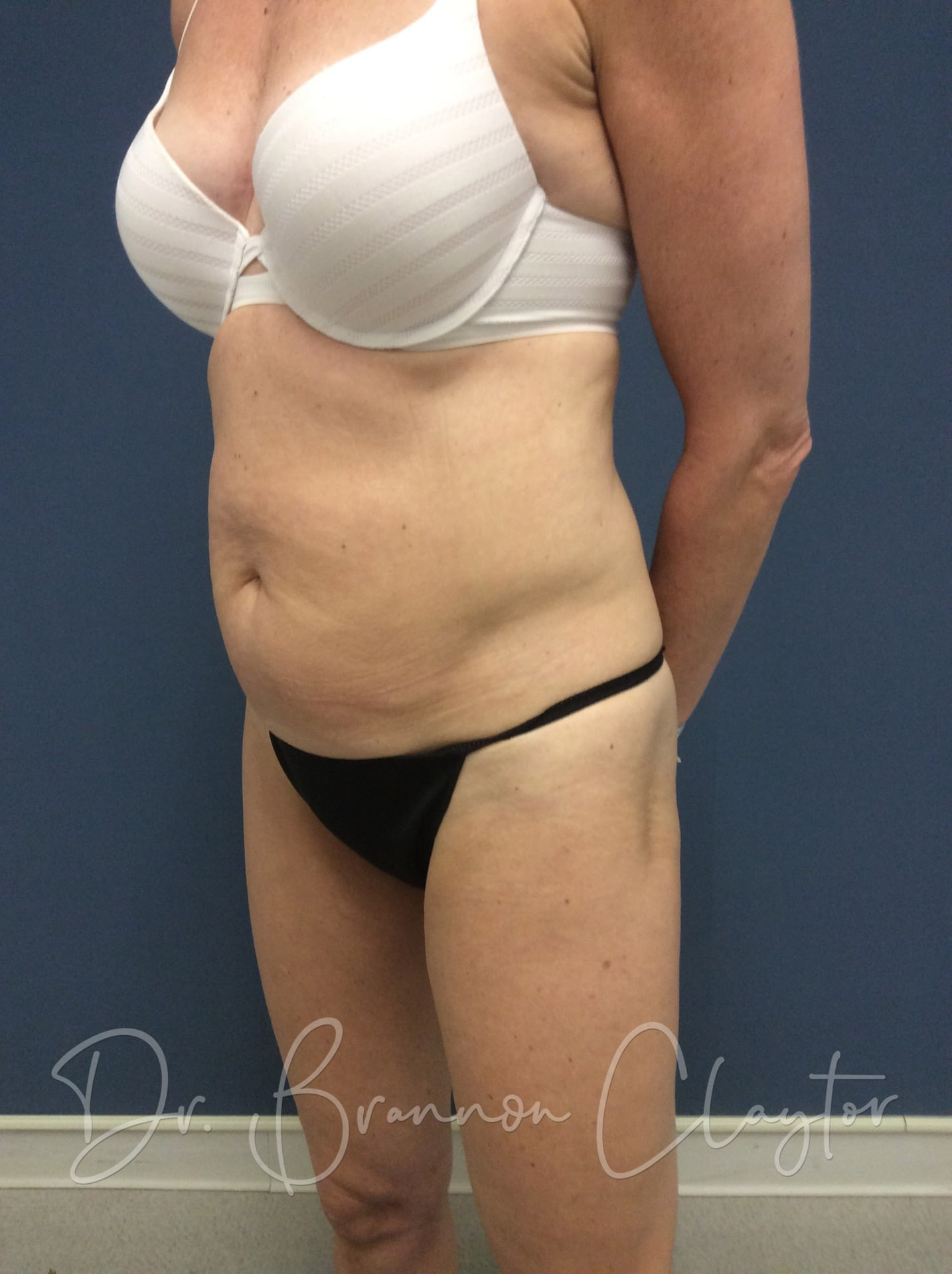 58 Year Old 1 treatment of CoolSculpting Before