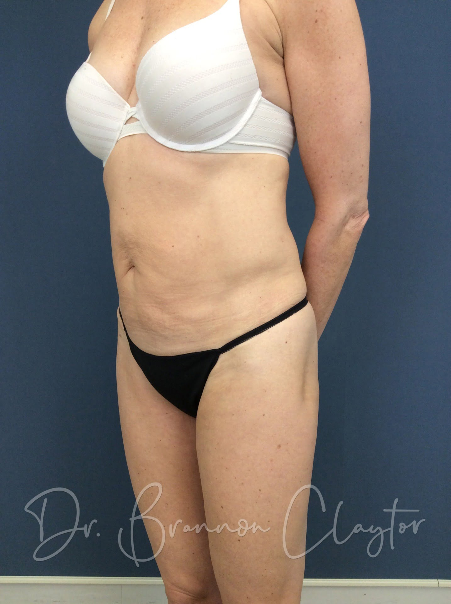 58 Year Old 1 treatment of CoolSculpting After