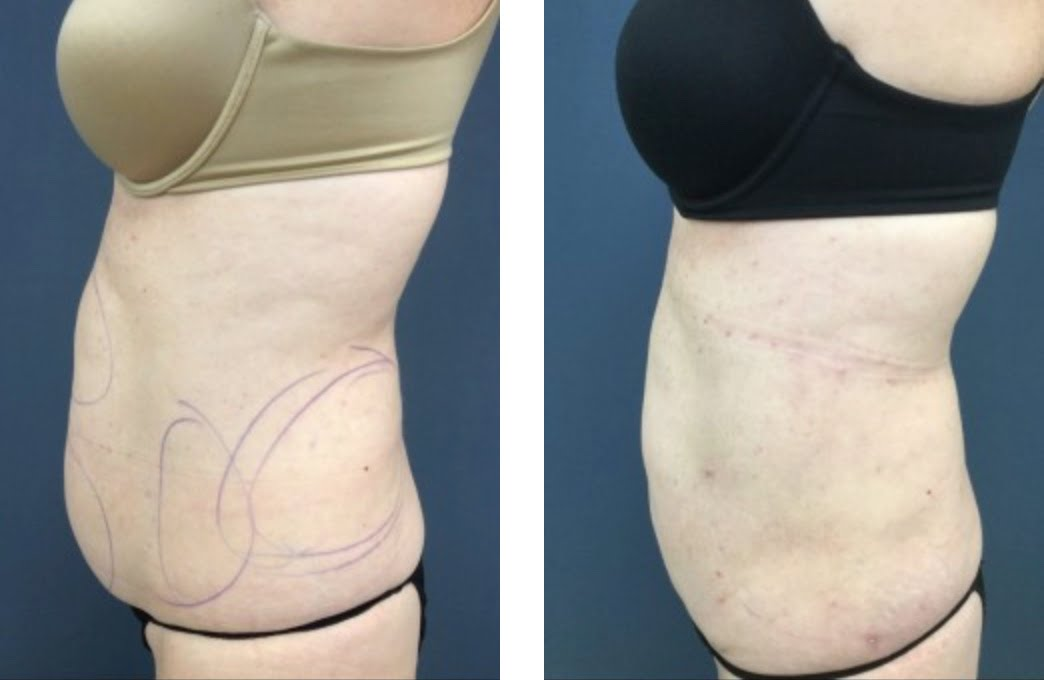 Before & After SmartLipo | Claytor Noone Plastic Surgery | Bryn Mawr PA