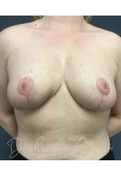 After Breast Reduction | Claytor Noone Plastic Surgery | Bryn Mawr, PA