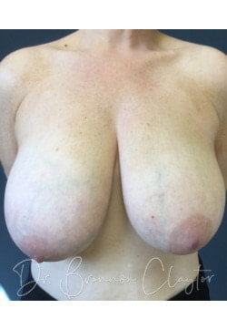 Before Breast Reduction | Claytor Noone Plastic Surgery | Bryn Mawr, PA