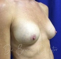 Breast Augmentation After Surgery Bryn Mawr PA