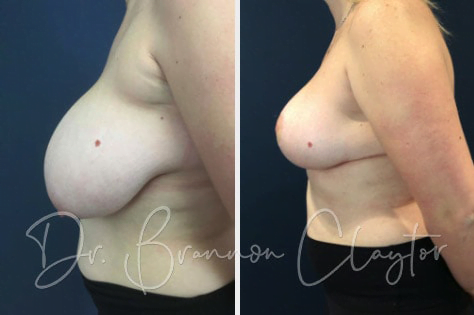 Breast Lift Before & After