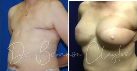 Breast Reconstruction Before:After