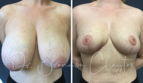 Breast Reduction Before:After