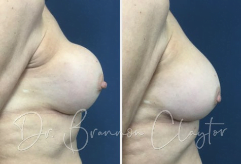 Revision Breast Augmentation Before:After