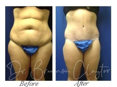 Liposuction In Bryn Mawr Pa Claytor Noone