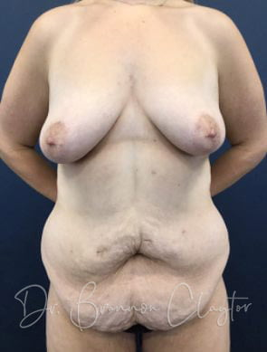 Tummy Tuck with Breast Lift Augmentation