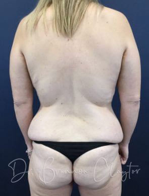 Fat Grafting to Buttocks