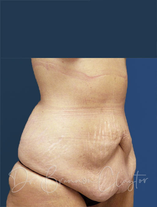 mommy-makeover-tummy-tuck-101b-before