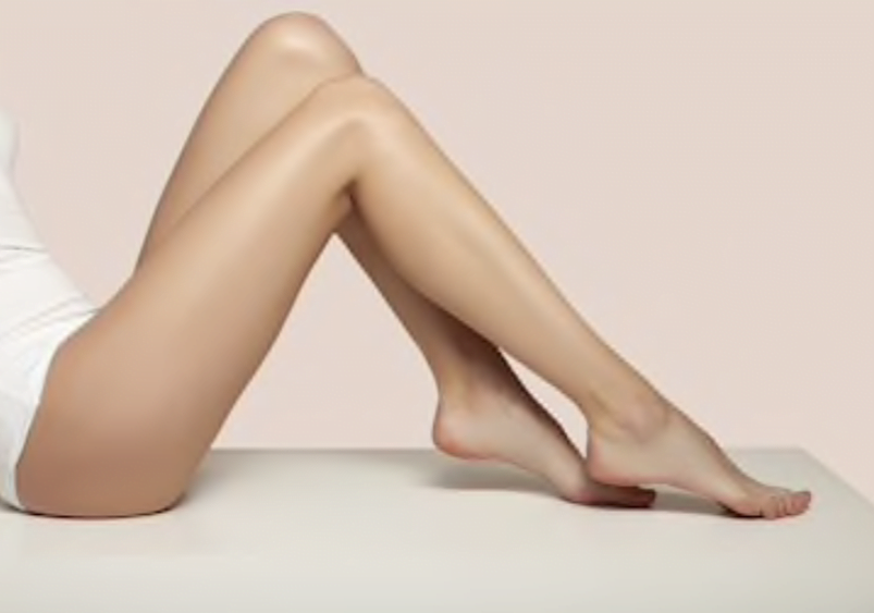legs treated with laser hair removal