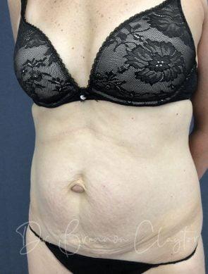 tummy-tuck-46952b-before