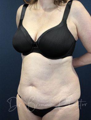 tummy-tuck-47439b-before