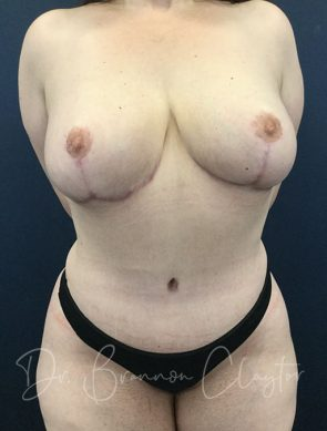Tummy Tuck with Breast Reduction