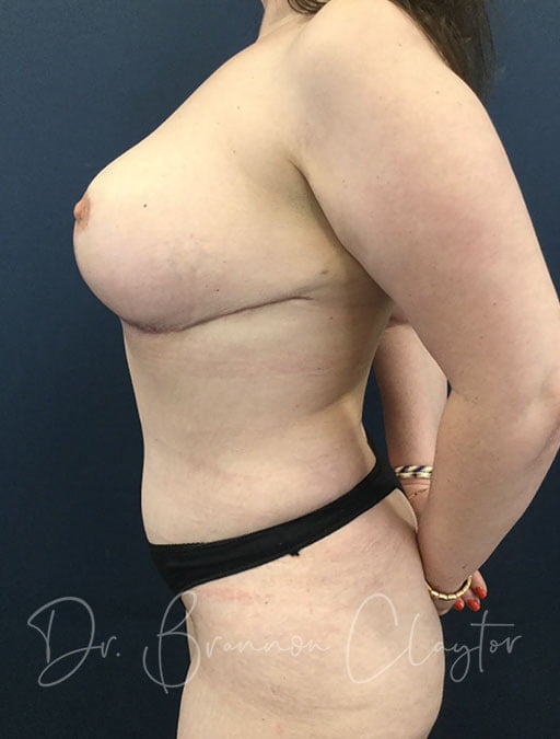 tummy-tuck-breast-reduction-102c-after