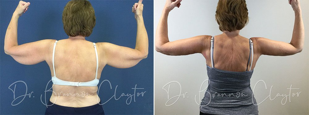 Arm Lift Patient Results