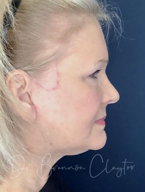 Facelift & Lower Eyelid Lift